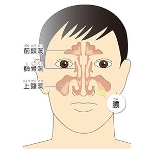 蓄のう症・副鼻腔炎