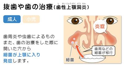 抜歯や歯の治療