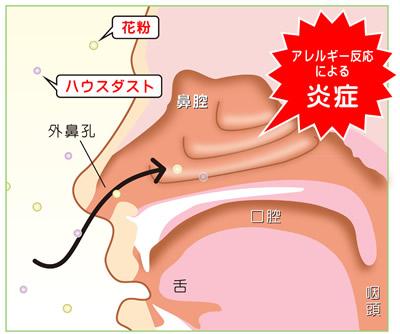 アレルギー性鼻炎